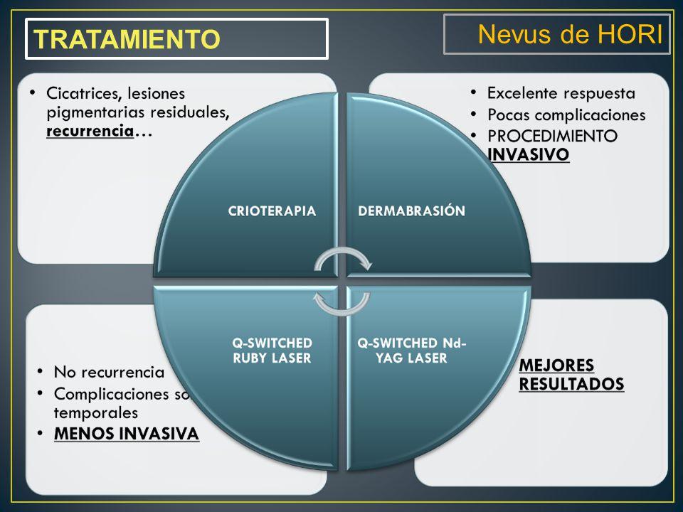 Nevus de HORI TRATAMIENTO