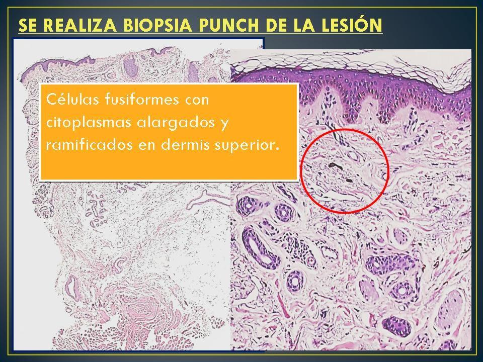 -Presencia de melanocitos dérmicos con pigmento melánico dispuestos paralelos a la superficie epidérmica; -Citoplasmas alargados +/- ramificados; -Dermis superior y media