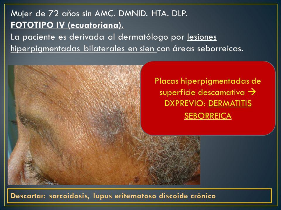 Mujer de 72 años sin AMC.DMNID. HTA. DLP. FOTOTIPO IV (ecuatoriana).