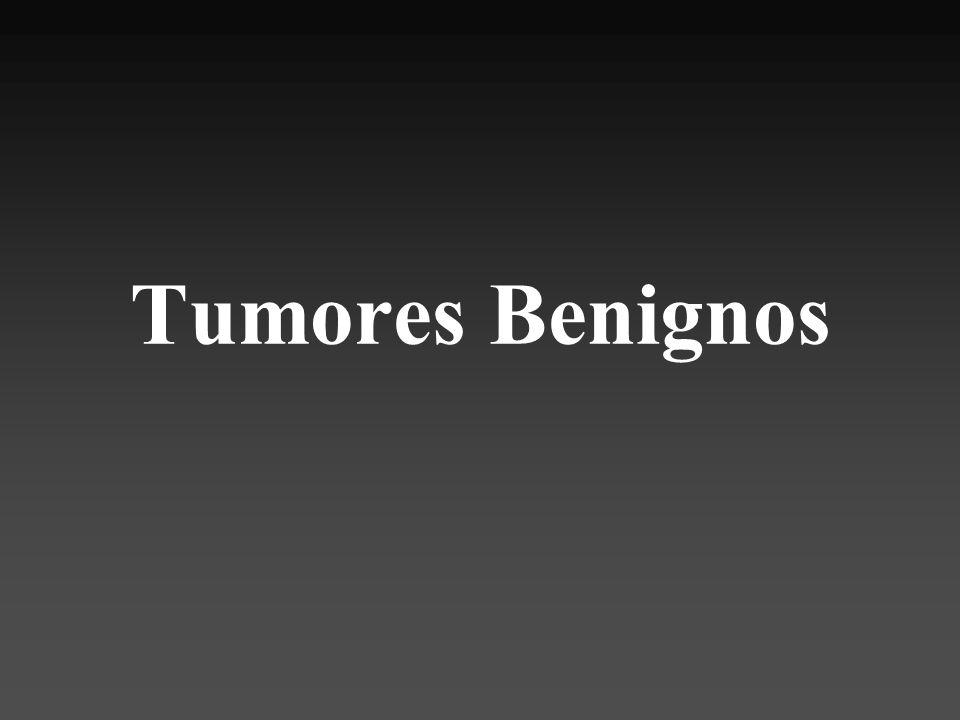 Macroscópica Tumor bien delimitado Cápsula fina Aspecto quistico