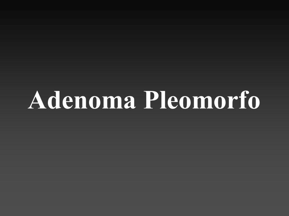 60% tumores parótida 50% tumores submaxilar 40% tumores salivales menores