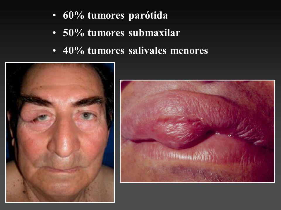 Clínica Tumor firme, asintomática Crecimiento expansivo lento 10% lóbulo profundo
