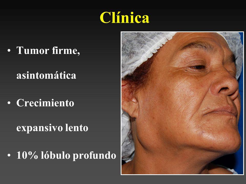 Mas frecuente: 35% neoplasias malignas glándulas salivales Sexo: 2-1 femenino (lengua y trígono)