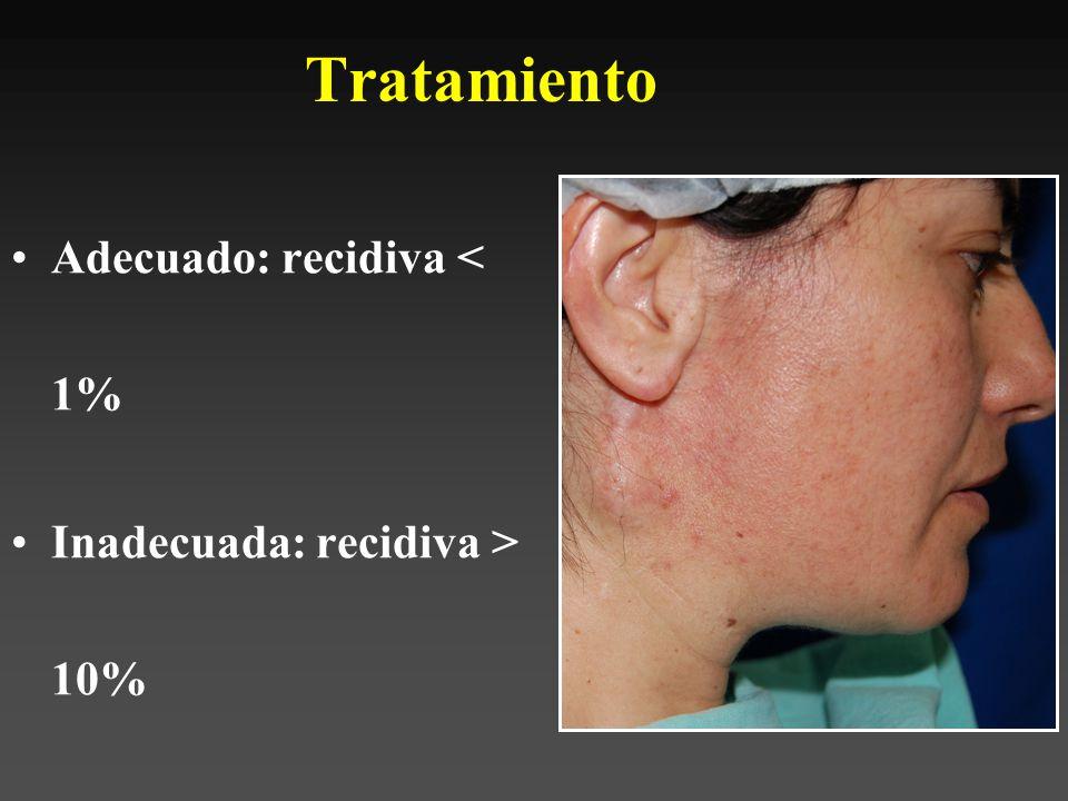 Tratamiento Vaciamiento cuello –Adenopatías positivas –Alto grado