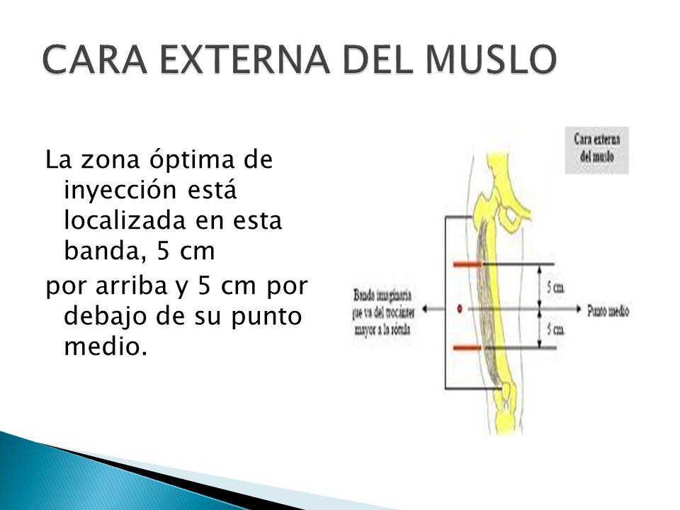 La zona óptima de inyección está localizada en esta banda, 5 cm por arriba y 5 cm por debajo de su punto medio.