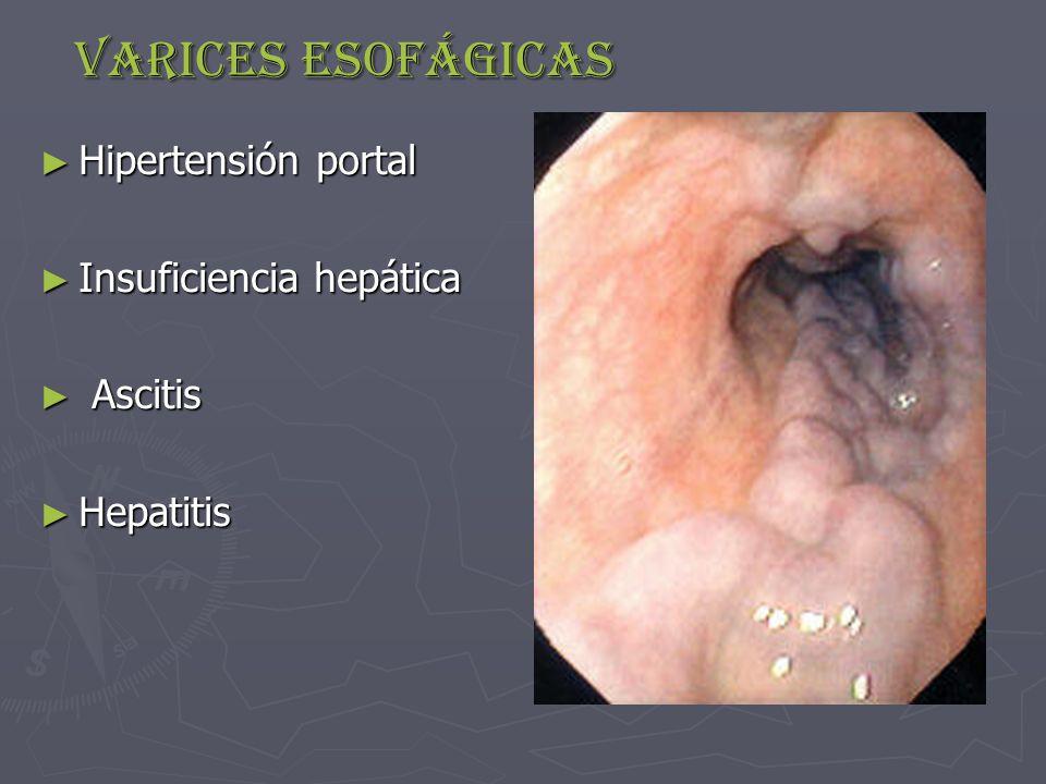 Varices esofágicas ► Hipertensión portal ► Insuficiencia hepática ► Ascitis ► Hepatitis