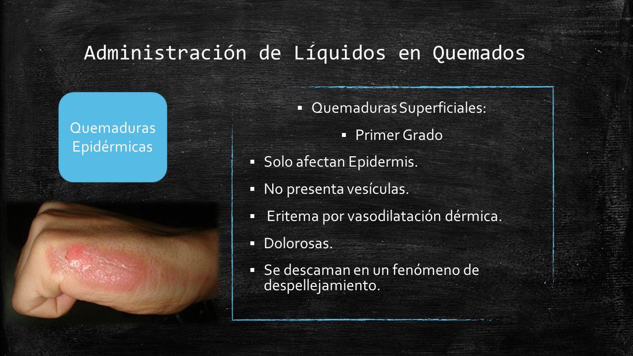 Administración de Líquidos en Quemados  Quemaduras Superficiales:  Primer Grado  Solo afectan Epidermis.