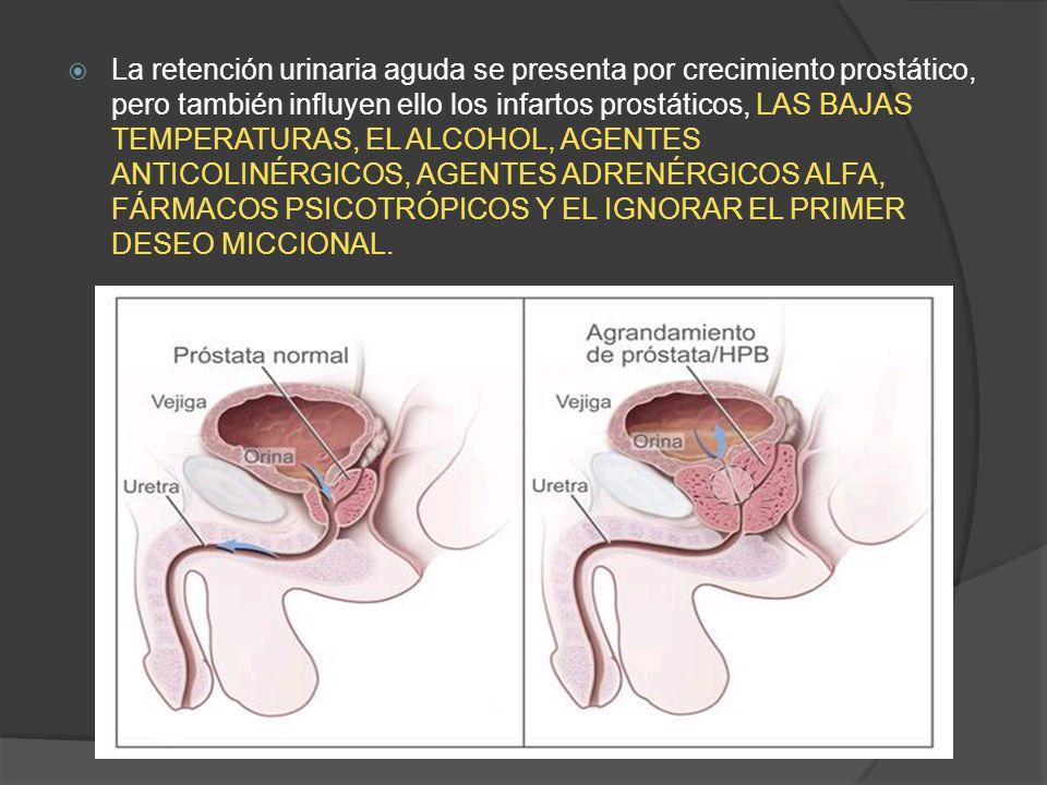  La retención urinaria aguda se presenta por crecimiento prostático, pero también influyen ello los infartos prostáticos, LAS BAJAS TEMPERATURAS, EL