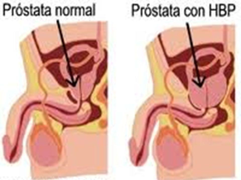 Etiología Las células de la próstata poseen receptores sensibles a la testosterona y a los estrógenos, cuando el desequilibrio varía por la edad este desequilibrio estimula la producción de factores de crecimiento celular originando el progresivo aumento de tamaño de la glándula que puede ser variable.