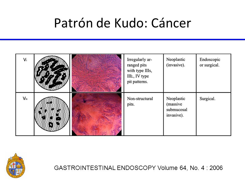 Patrón de Kudo: Cáncer GASTROINTESTINAL ENDOSCOPY Volume 64, No. 4 : 2006