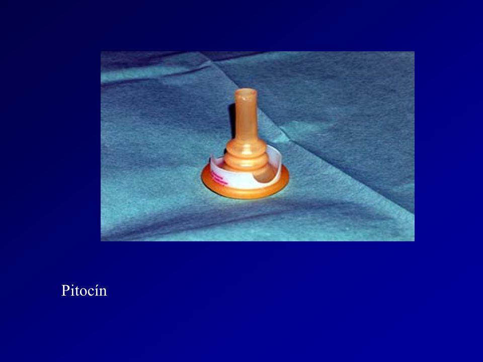 Pitocín