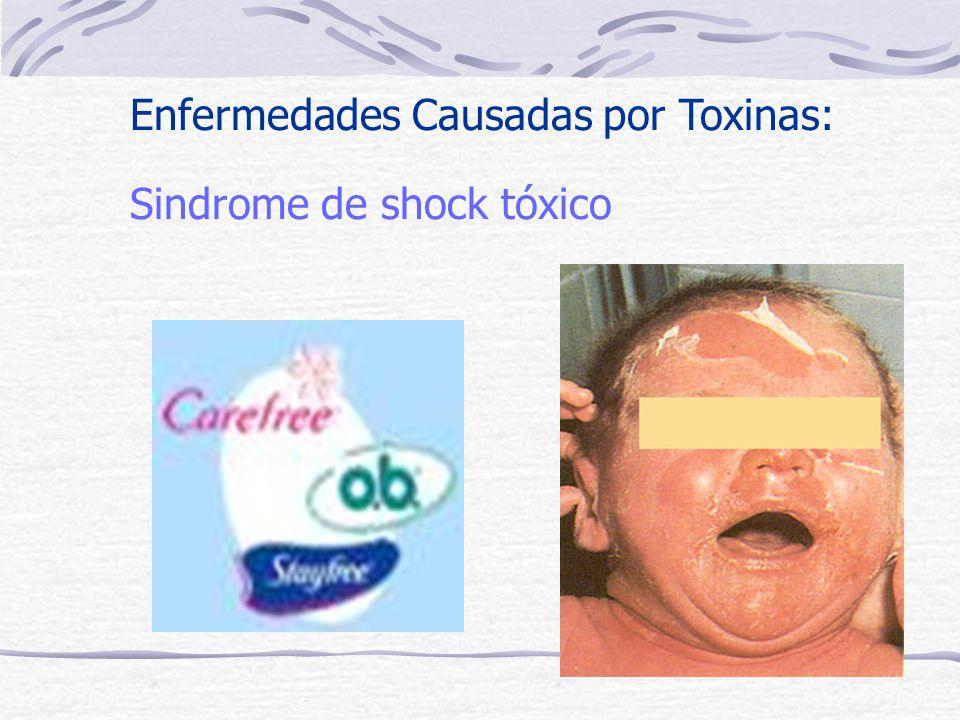 Sindrome de shock tóxico Enfermedades Causadas por Toxinas: