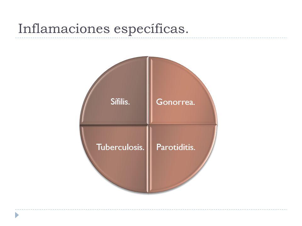 Inflamaciones específicas. Gonorrea. Parotiditis.Tuberculosis. Sífilis.