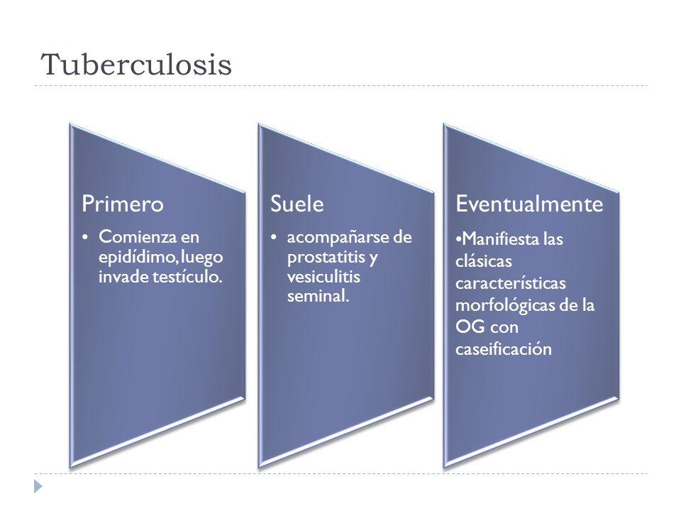 Tuberculosis Primero Comienza en epidídimo, luego invade testículo.