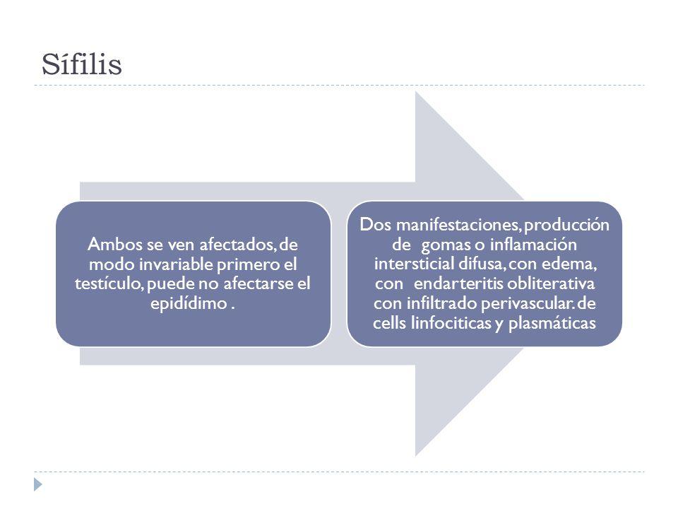 Sífilis Ambos se ven afectados, de modo invariable primero el testículo, puede no afectarse el epidídimo. Dos manifestaciones, producción de gomas o i