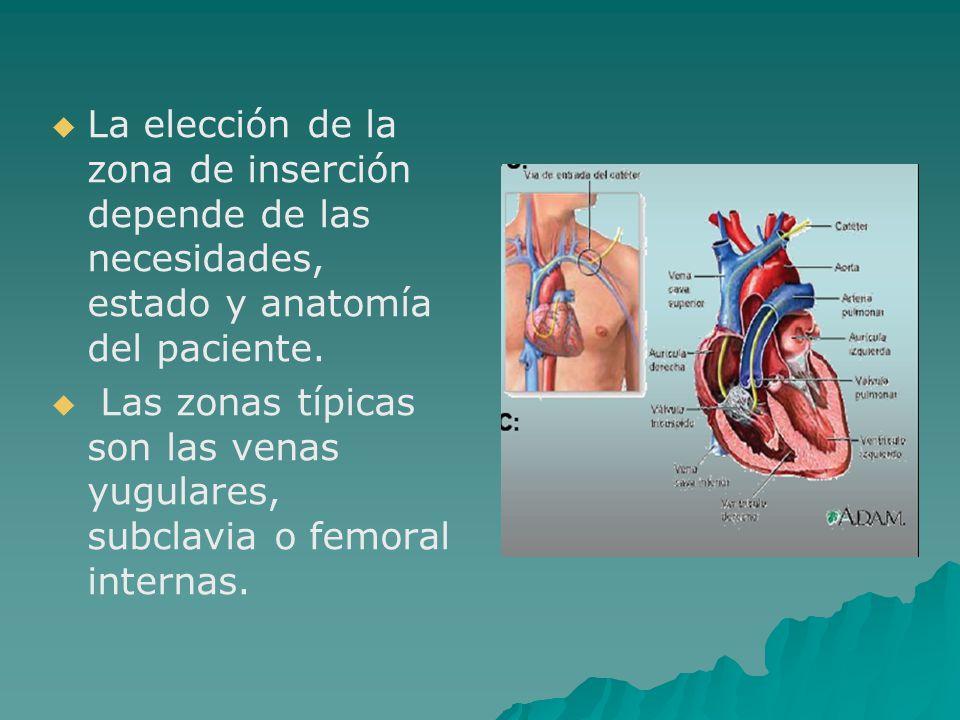 RETIRO DEL CATÉTER VENOSO CENTRAL   Compruebe que el catéter esté integro.