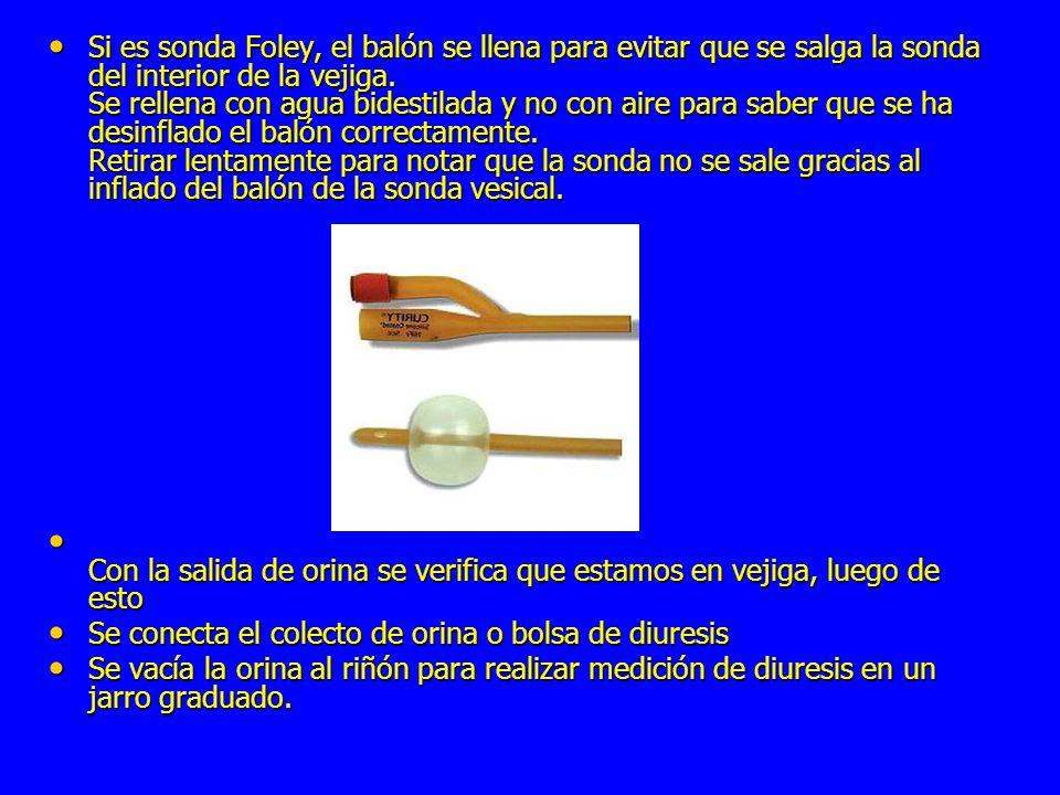 Si es sonda Foley, el balón se llena para evitar que se salga la sonda del interior de la vejiga.