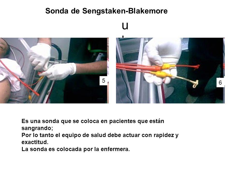 ukuk 5 6 Es una sonda que se coloca en pacientes que están sangrando; Por lo tanto el equipo de salud debe actuar con rapidez y exactitud.