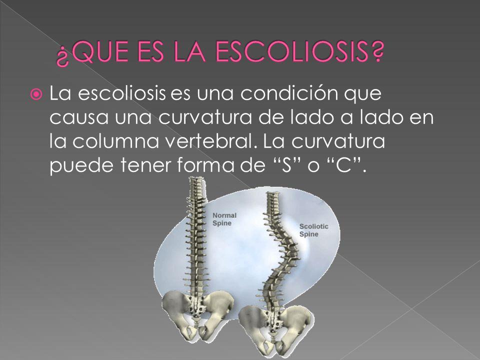  La escoliosis es una condición que causa una curvatura de lado a lado en la columna vertebral.