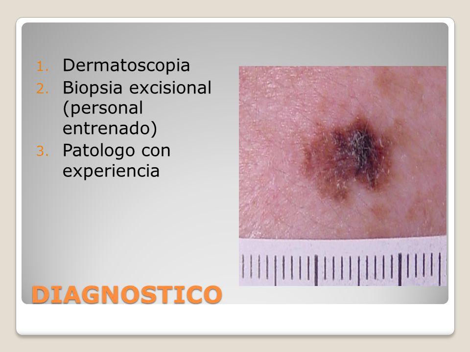 DIAGNOSTICO 1. Dermatoscopia 2. Biopsia excisional (personal entrenado) 3. Patologo con experiencia