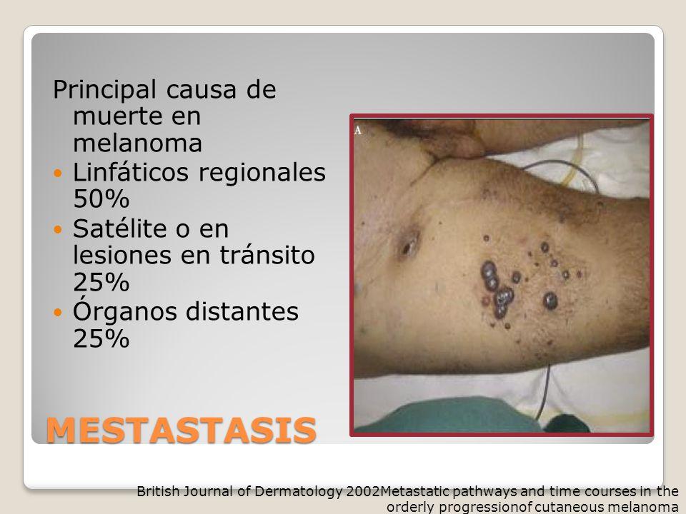 MESTASTASIS Principal causa de muerte en melanoma Linfáticos regionales 50% Satélite o en lesiones en tránsito 25% Órganos distantes 25% British Journal of Dermatology 2002Metastatic pathways and time courses in the orderly progressionof cutaneous melanoma