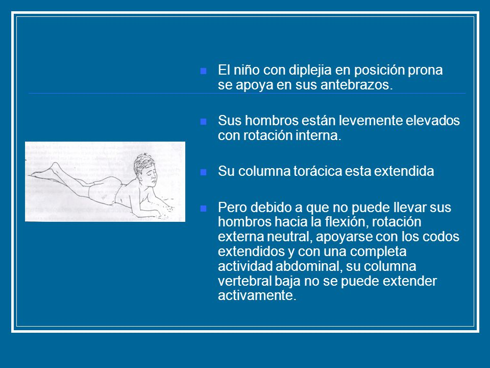 El niño con diplejia en posición prona se apoya en sus antebrazos. Sus hombros están levemente elevados con rotación interna. Su columna torácica esta