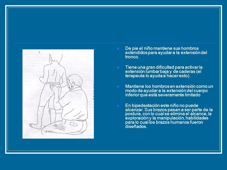 De pie el niño mantiene sus hombros extendidos para ayudar a la extensión del tronco. Tiene una gran dificultad para activar la extensión lumbar baja