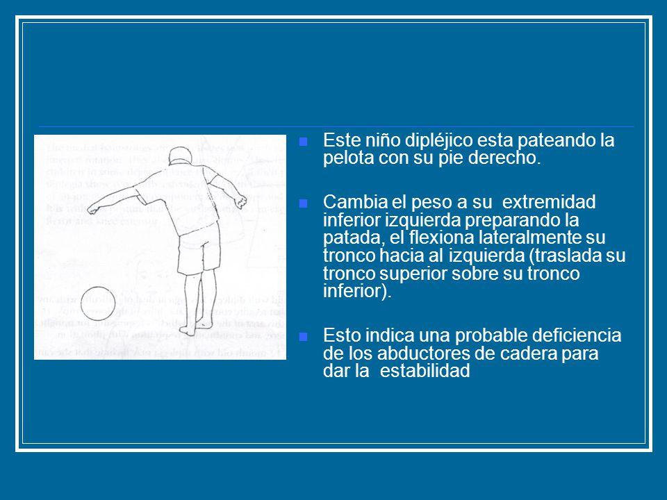 Este niño dipléjico esta pateando la pelota con su pie derecho. Cambia el peso a su extremidad inferior izquierda preparando la patada, el flexiona la