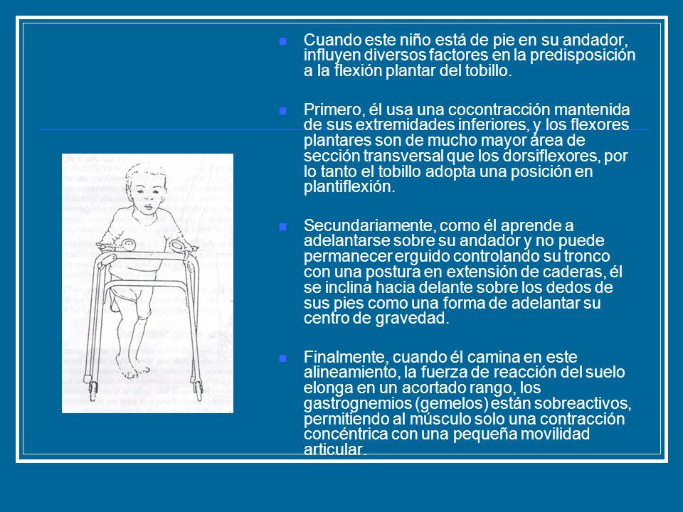Cuando este niño está de pie en su andador, influyen diversos factores en la predisposición a la flexión plantar del tobillo. Primero, él usa una coco