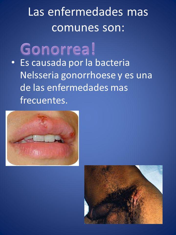 Las enfermedades mas comunes son: Es causada por la bacteria Nelsseria gonorrhoese y es una de las enfermedades mas frecuentes.
