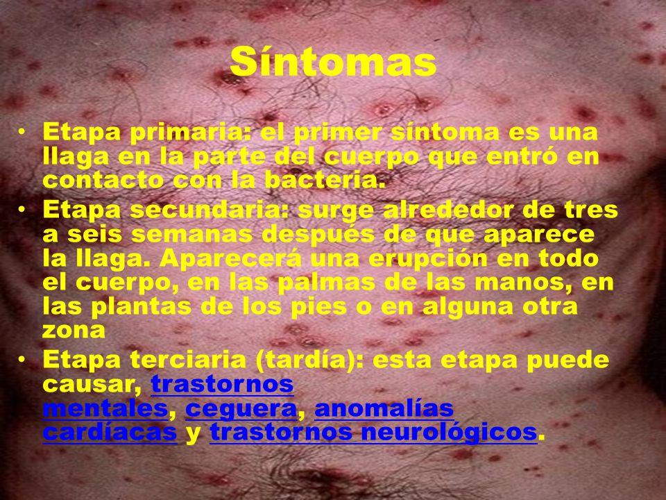 Síntomas Etapa primaria: el primer síntoma es una llaga en la parte del cuerpo que entró en contacto con la bacteria. Etapa secundaria: surge alrededo