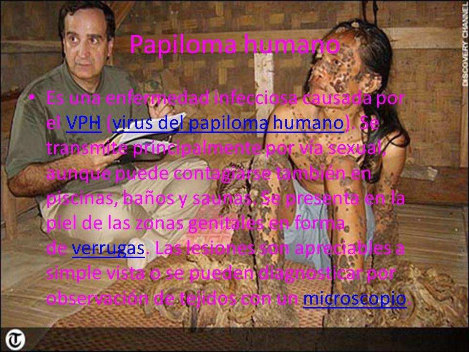 Papiloma humano Es una enfermedad infecciosa causada por el VPH (virus del papiloma humano). Se transmite principalmente por vía sexual, aunque puede