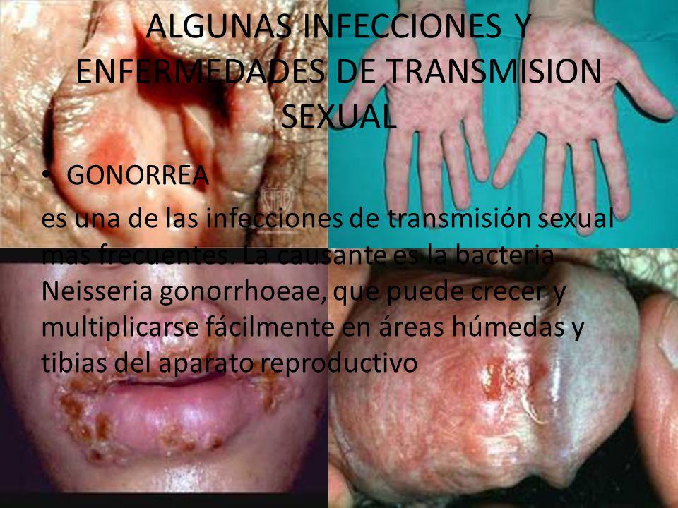 ALGUNAS INFECCIONES Y ENFERMEDADES DE TRANSMISION SEXUAL GONORREA es una de las infecciones de transmisión sexual mas frecuentes.