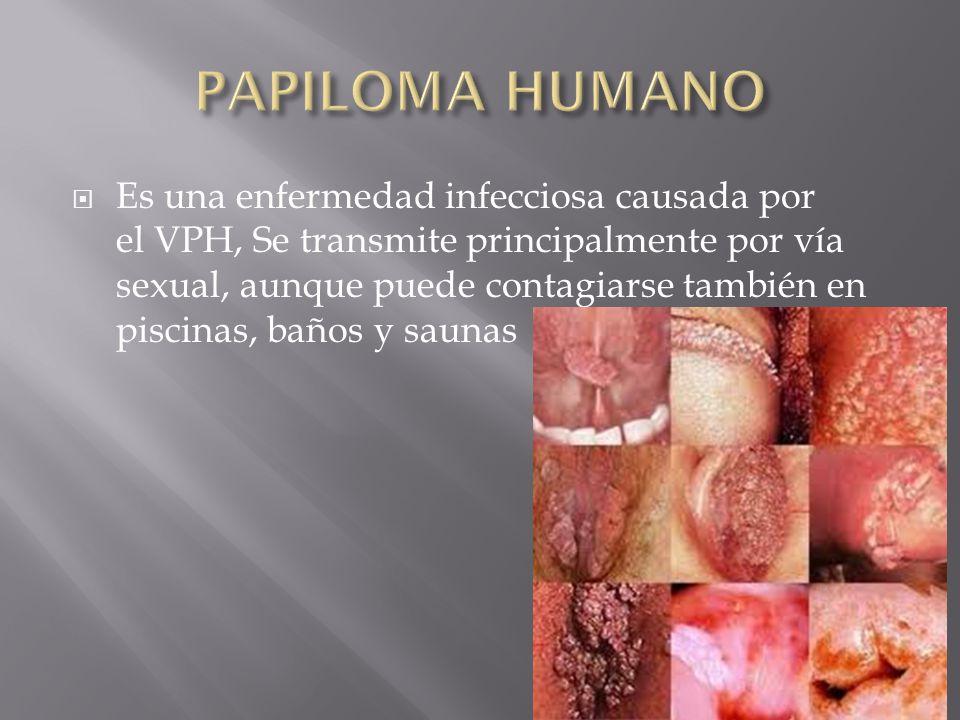  Es una enfermedad infecciosa causada por el VPH, Se transmite principalmente por vía sexual, aunque puede contagiarse también en piscinas, baños y saunas