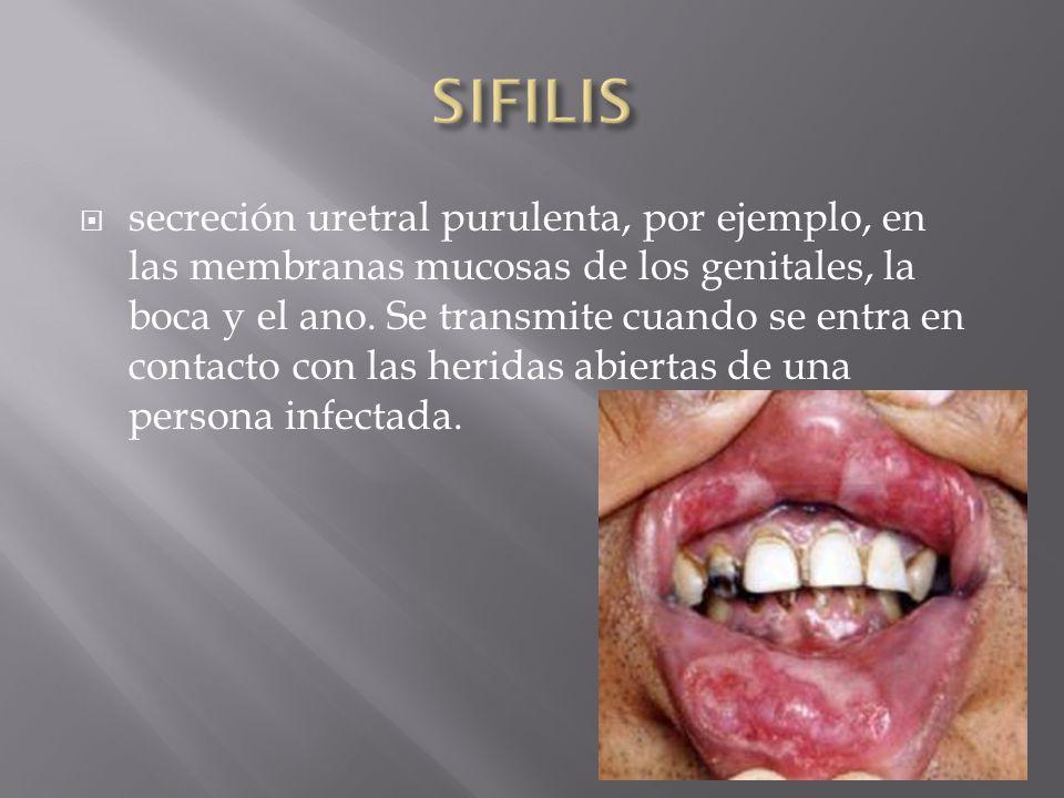  secreción uretral purulenta, por ejemplo, en las membranas mucosas de los genitales, la boca y el ano.
