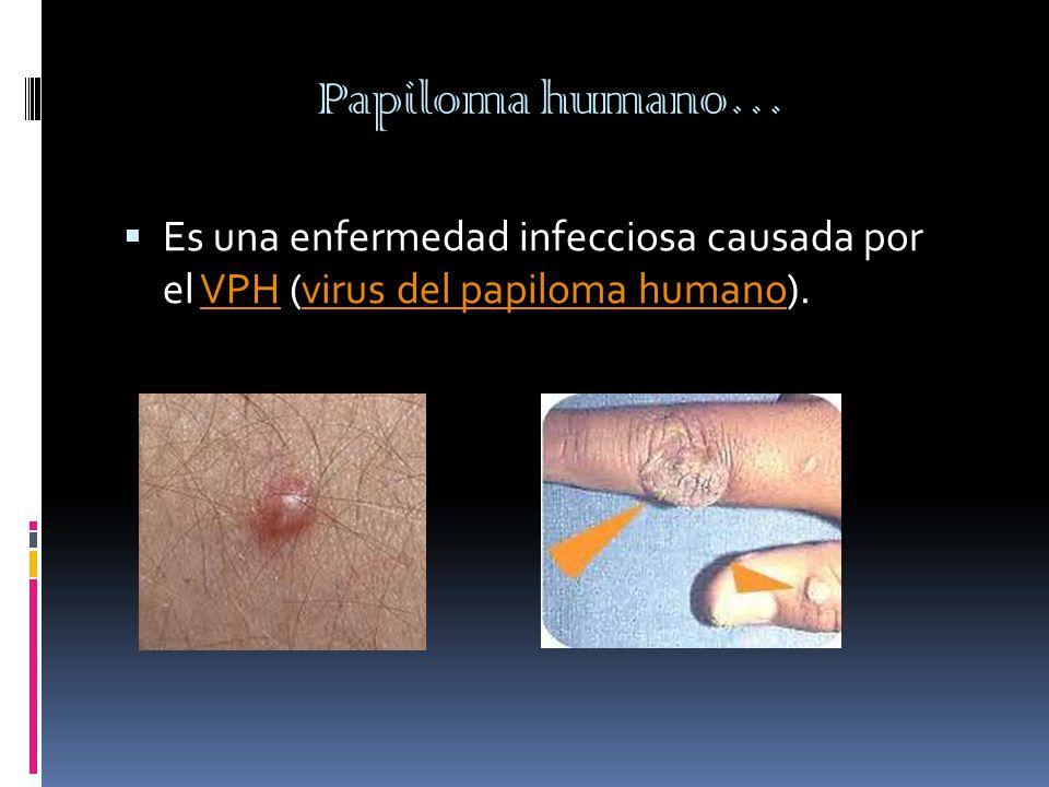 Papiloma humano…  Es una enfermedad infecciosa causada por el VPH (virus del papiloma humano).VPHvirus del papiloma humano