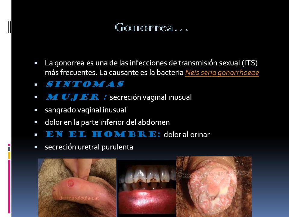 Gonorrea…  La gonorrea es una de las infecciones de transmisión sexual (ITS) más frecuentes.