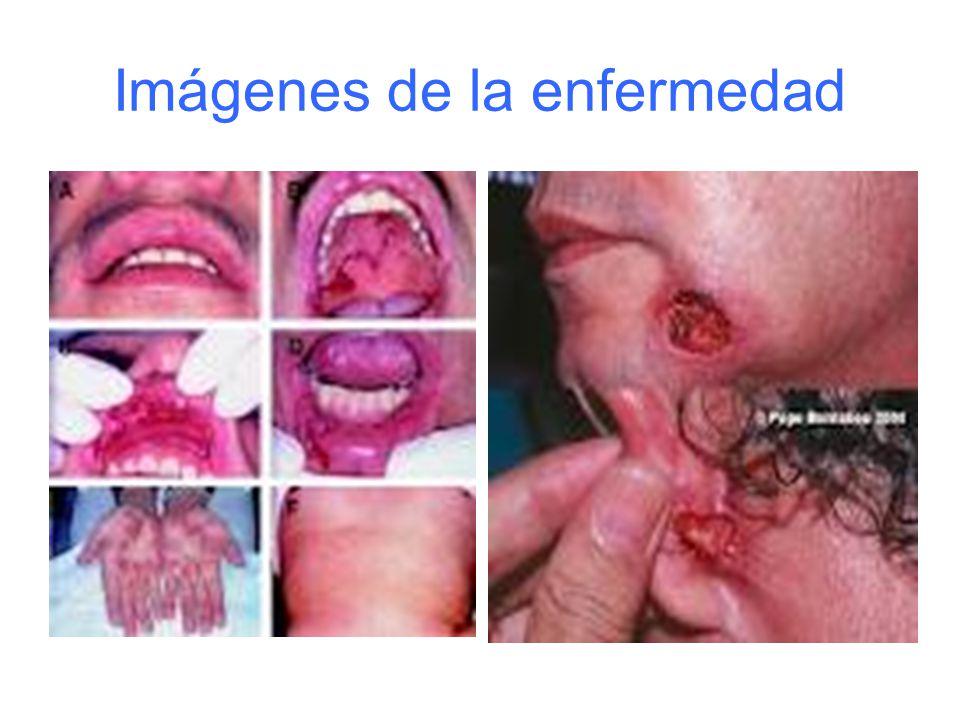 Imágenes de la enfermedad