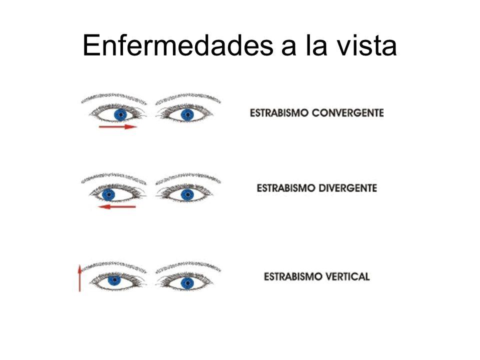 Enfermedades a la vista
