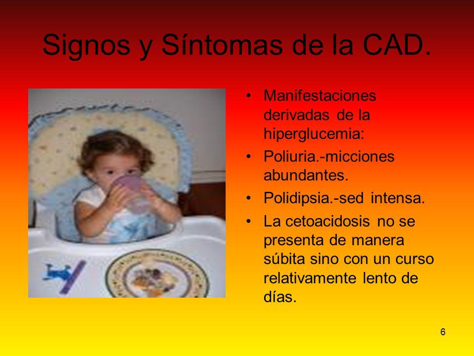 6 Signos y Síntomas de la CAD. Manifestaciones derivadas de la hiperglucemia: Poliuria.-micciones abundantes. Polidipsia.-sed intensa. La cetoacidosis