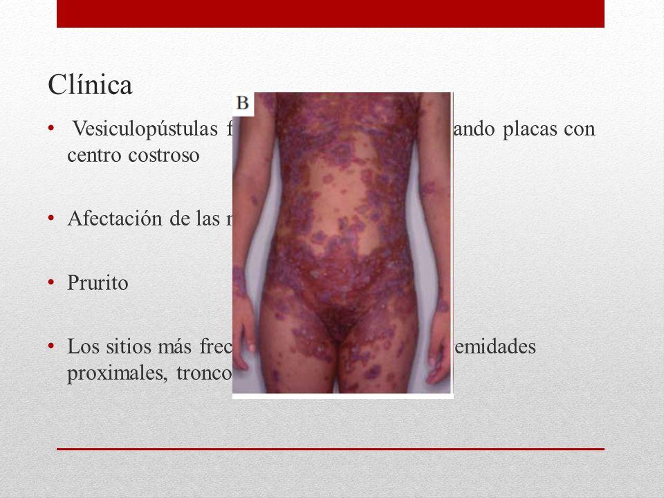 Clínica Vesiculopústulas frágiles confluentes, formando placas con centro costroso Afectación de las mucosas es rara Prurito Los sitios más frecuentes afectados son extremidades proximales, tronco, región axilar e inguinal