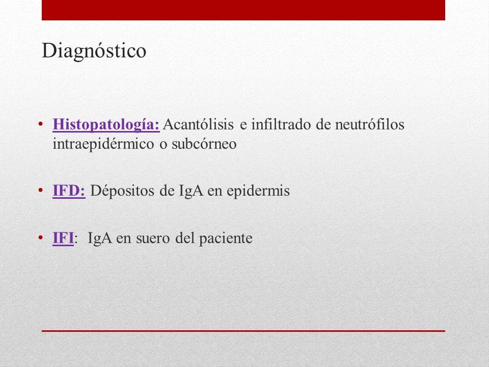 Diagnóstico Histopatología: Acantólisis e infiltrado de neutrófilos intraepidérmico o subcórneo IFD: Dépositos de IgA en epidermis IFI: IgA en suero del paciente