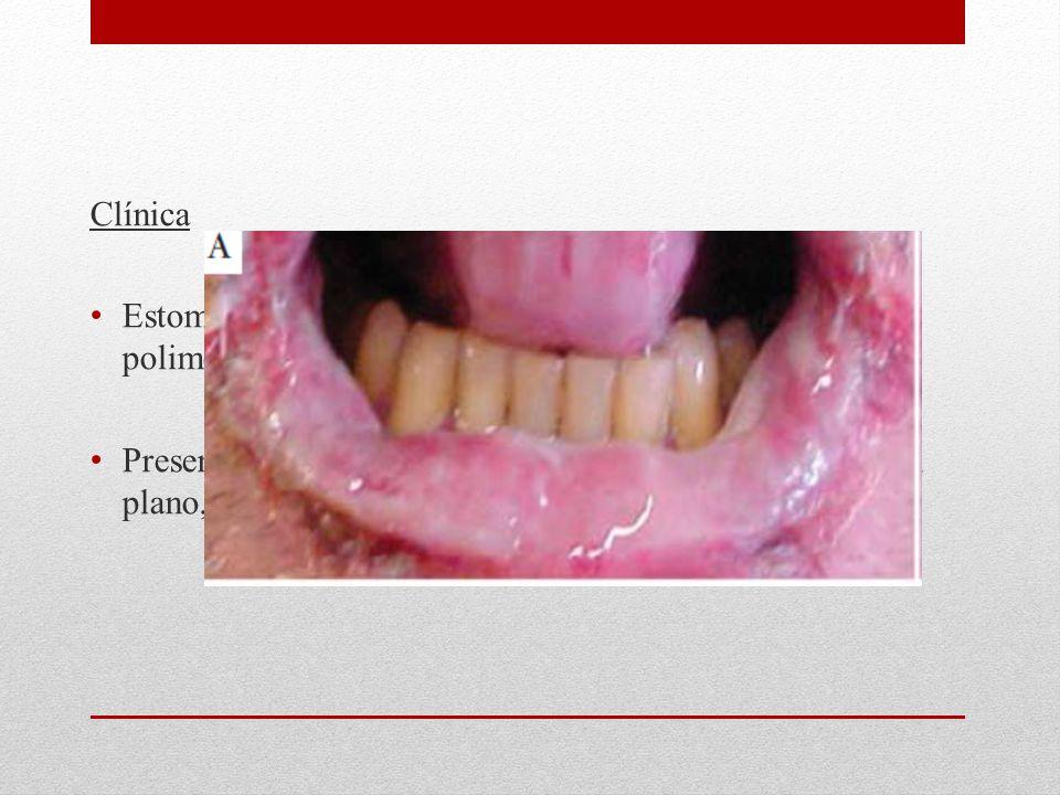 Clínica Estomatitis erosiva dolorosa y lesiones cutáneas polimorfas (Vesículas, ampollas, pápulas y placas) Presentar lesiones similares a eritema multiforme, liquen plano, pénfigo, penfigoide ampollar