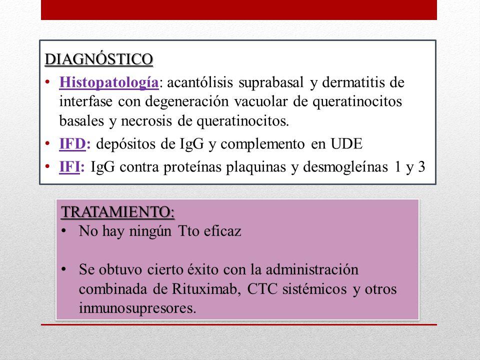DIAGNÓSTICO Histopatología: acantólisis suprabasal y dermatitis de interfase con degeneración vacuolar de queratinocitos basales y necrosis de queratinocitos.