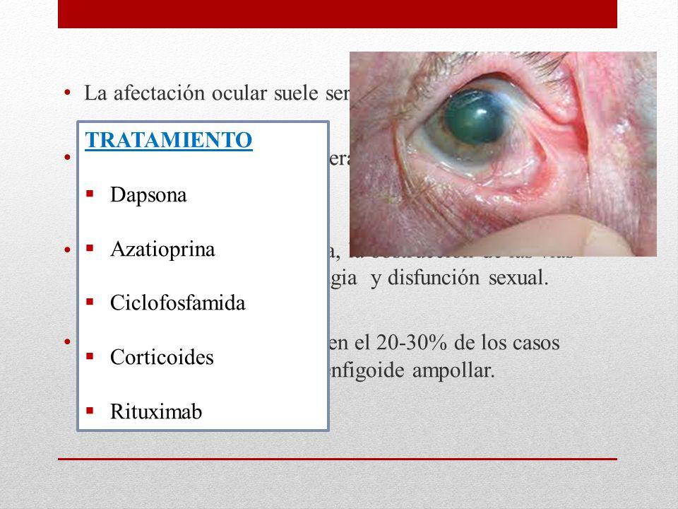 La afectación ocular suele ser bilateral En general comienza unilateralmente con conjuntivitis, entropión y triquiasis.