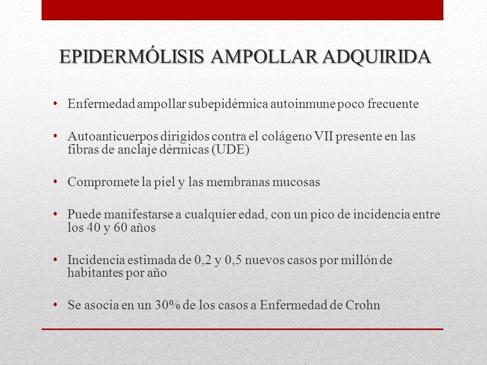 EPIDERMÓLISIS AMPOLLAR ADQUIRIDA Enfermedad ampollar subepidérmica autoinmune poco frecuente Autoanticuerpos dirigidos contra el colágeno VII presente en las fibras de anclaje dérmicas (UDE) Compromete la piel y las membranas mucosas Puede manifestarse a cualquier edad, con un pico de incidencia entre los 40 y 60 años Incidencia estimada de 0,2 y 0,5 nuevos casos por millón de habitantes por año Se asocia en un 30% de los casos a Enfermedad de Crohn