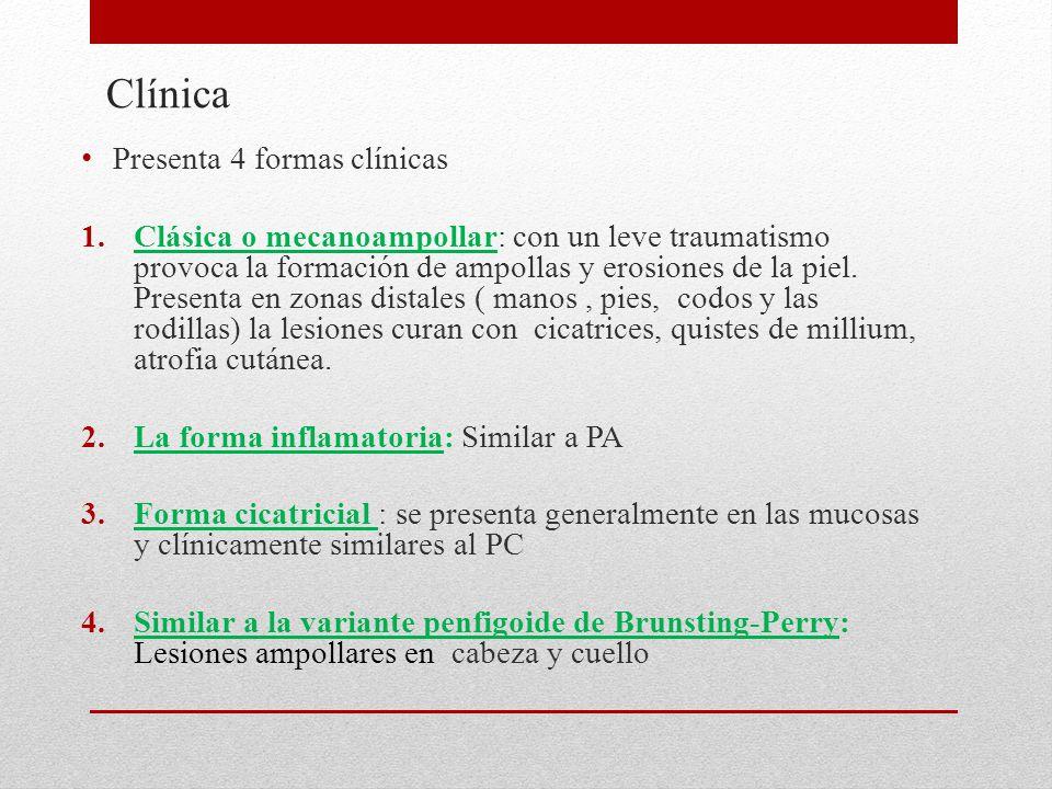 Clínica Presenta 4 formas clínicas 1.Clásica o mecanoampollar: con un leve traumatismo provoca la formación de ampollas y erosiones de la piel.
