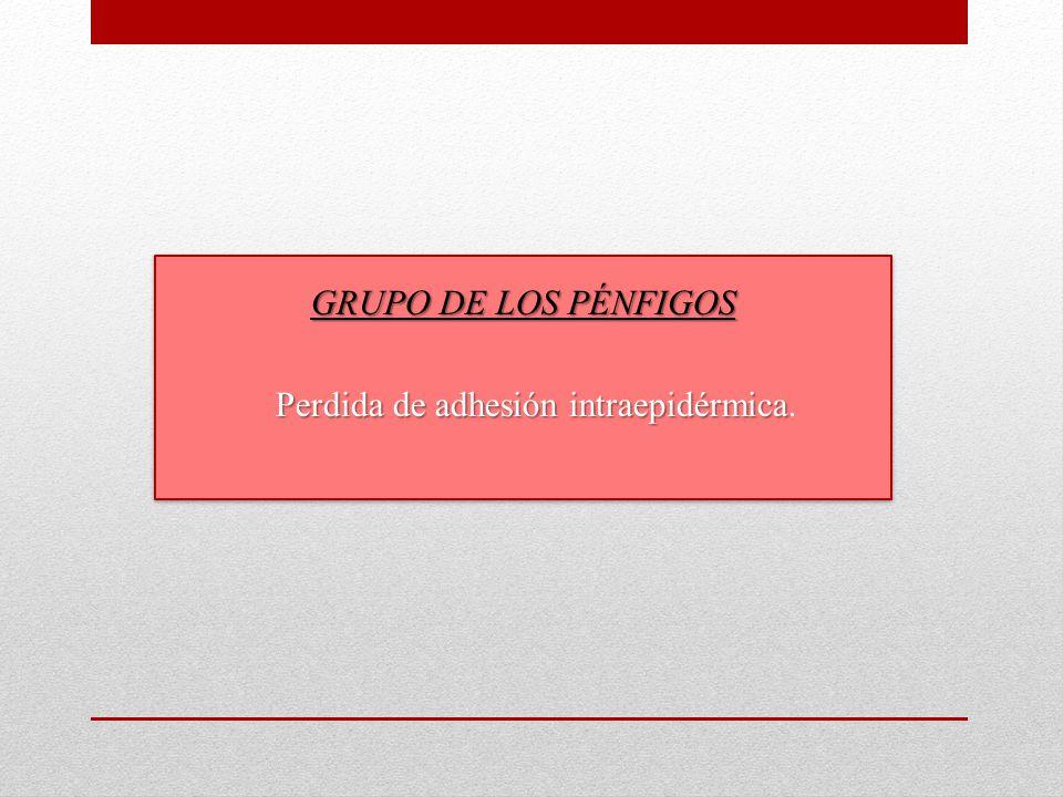 GRUPO DE LOS PÉNFIGOS Perdida de adhesión intraepidérmica Perdida de adhesión intraepidérmica.