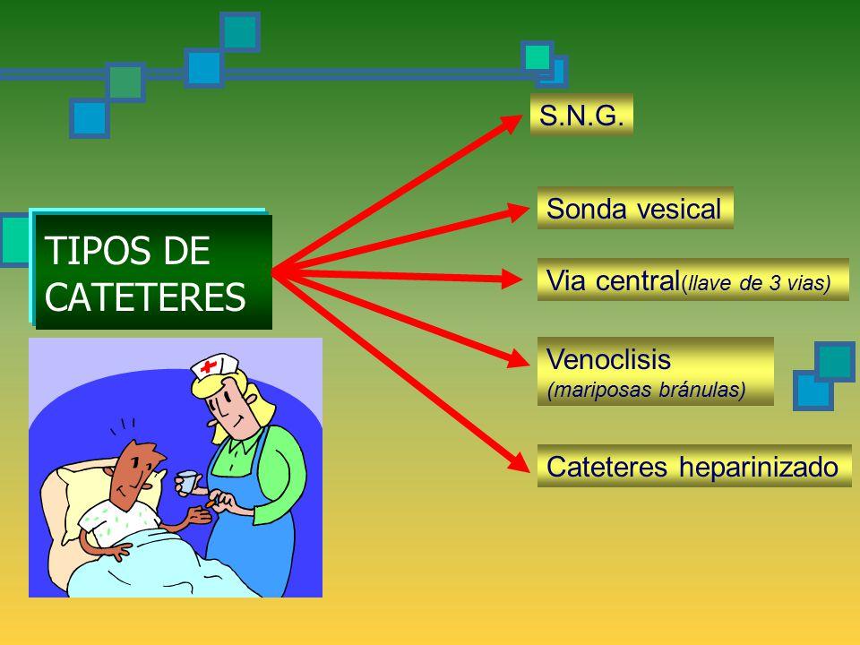 TIPOS DE CATETERES S.N.G.