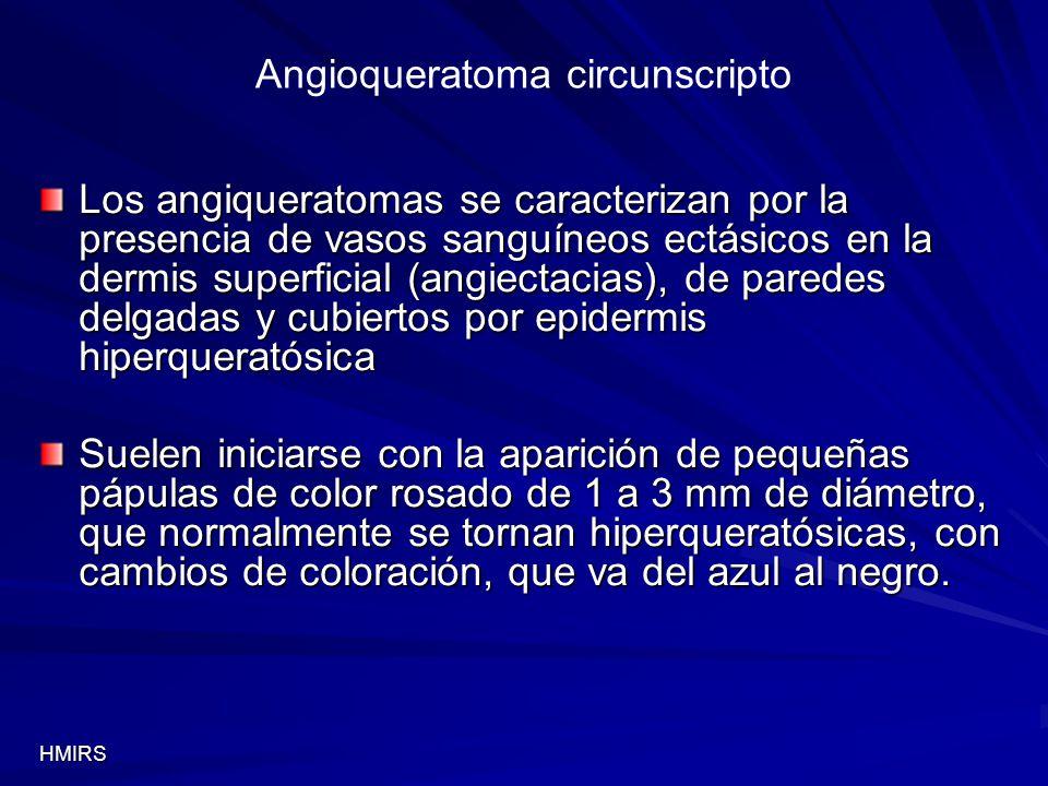 Angioqueratoma circunscripto Los angiqueratomas se caracterizan por la presencia de vasos sanguíneos ectásicos en la dermis superficial (angiectacias)